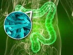 disbiosis intestinal ejemplos